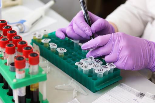 Test sierologici di Ats Insubria: 501 casi positivi tra i non operatori sanitari su 1.319 esiti noti