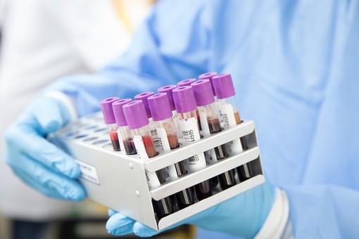 Coronavirus, i dati di lunedì 22 febbraio: nel Varesotto 34 contagi. Varese +1, Busto +4, Gallarate +2, Saronno +1
