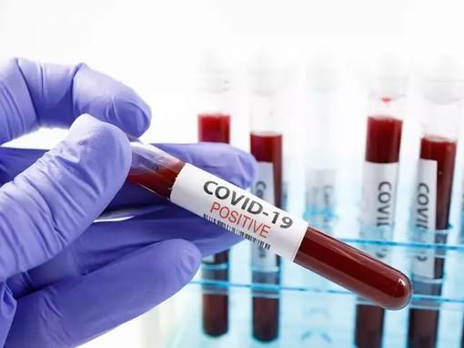 Coronavirus, i dati di venerdì 22 gennaio: nel Varesotto 213 contagi. Varese +17, Busto +19, Gallarate +12, Saronno +9