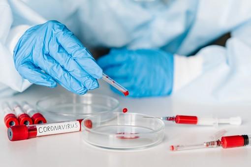 Coronavirus, comune per comune i dati dei contagi in provincia di Varese al 6 luglio