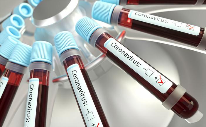 Coronavirus, il punto in provincia: Varese +4, Busto +2, Gallarate 0, Saronno +2